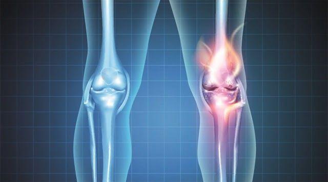 Nguyên nhân gây ra viêm khớp phản ứng chủ yếu do cơ thể bị nhiễm khuẩn