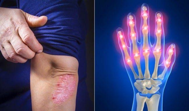 Viêm khớp vảy nến thường xảy ra ở các khớp ngón tay và ngón chân