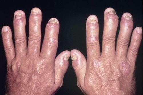 Bệnh lý này gây biến dạng các khớp ngón tay, ngón chân của người bệnh