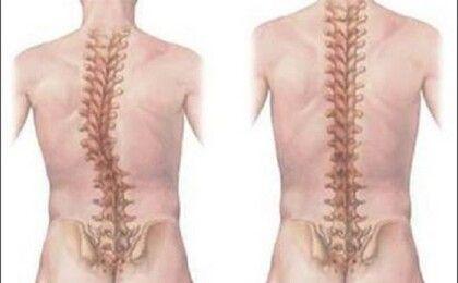 Dinh dưỡng đúng cách cho người mắc bệnh thoái hoá cột sống thắt lưng