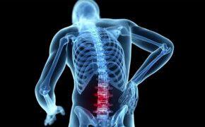 Thoái hóa cột sống thắt lưng là gì, ăn gì để hỗ trợ điều trị bệnh ?
