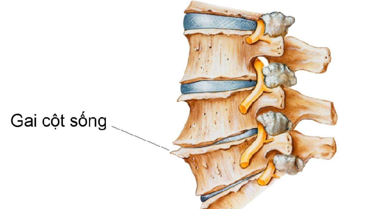 Bệnh gai cột sống do có sự hình thành các phần xương mọc ra phía ngoài và hai bên cột sống
