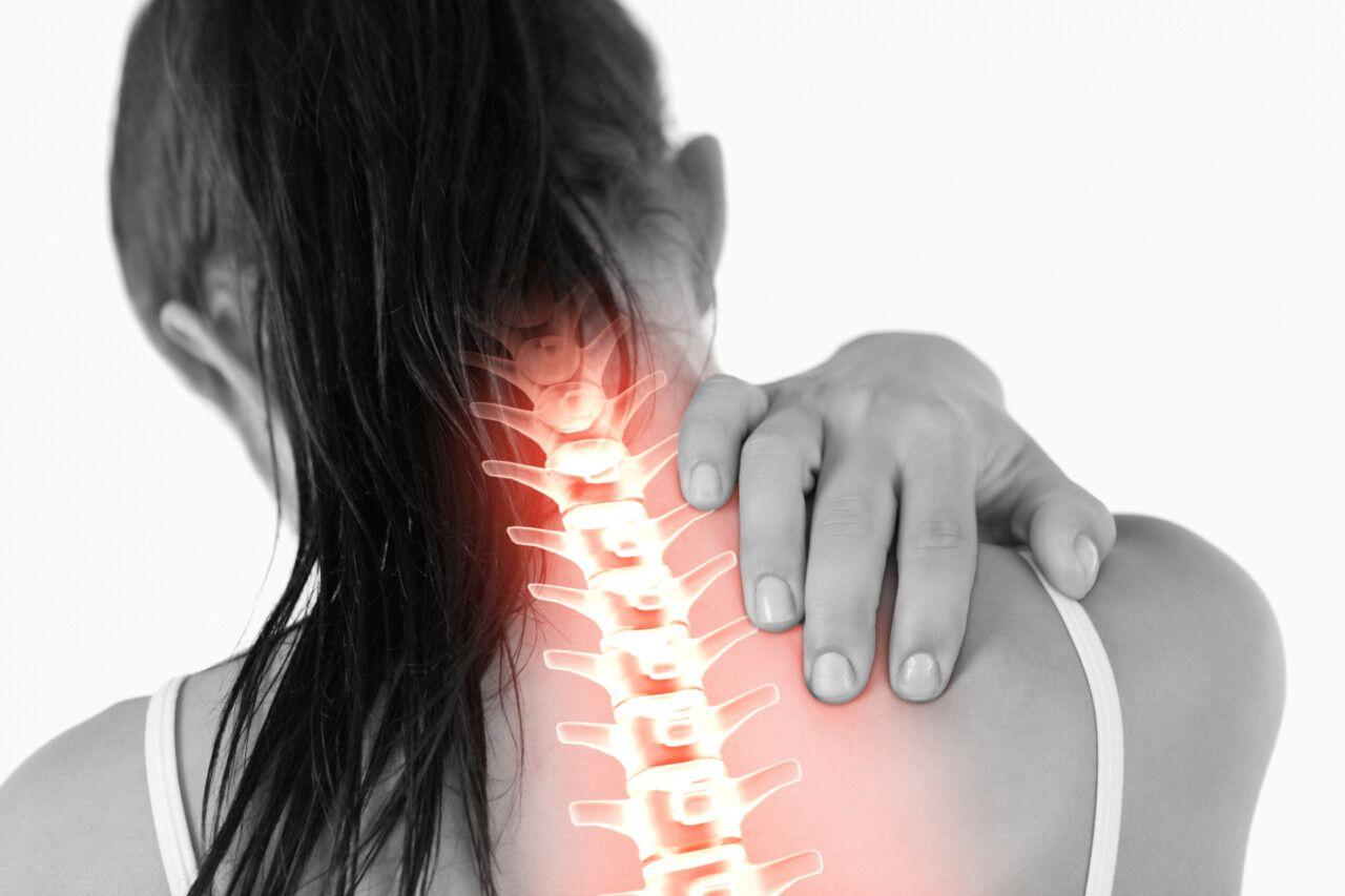 Hội chứng đau vai gáy là một dạng rối loạn chức năng thần kinh