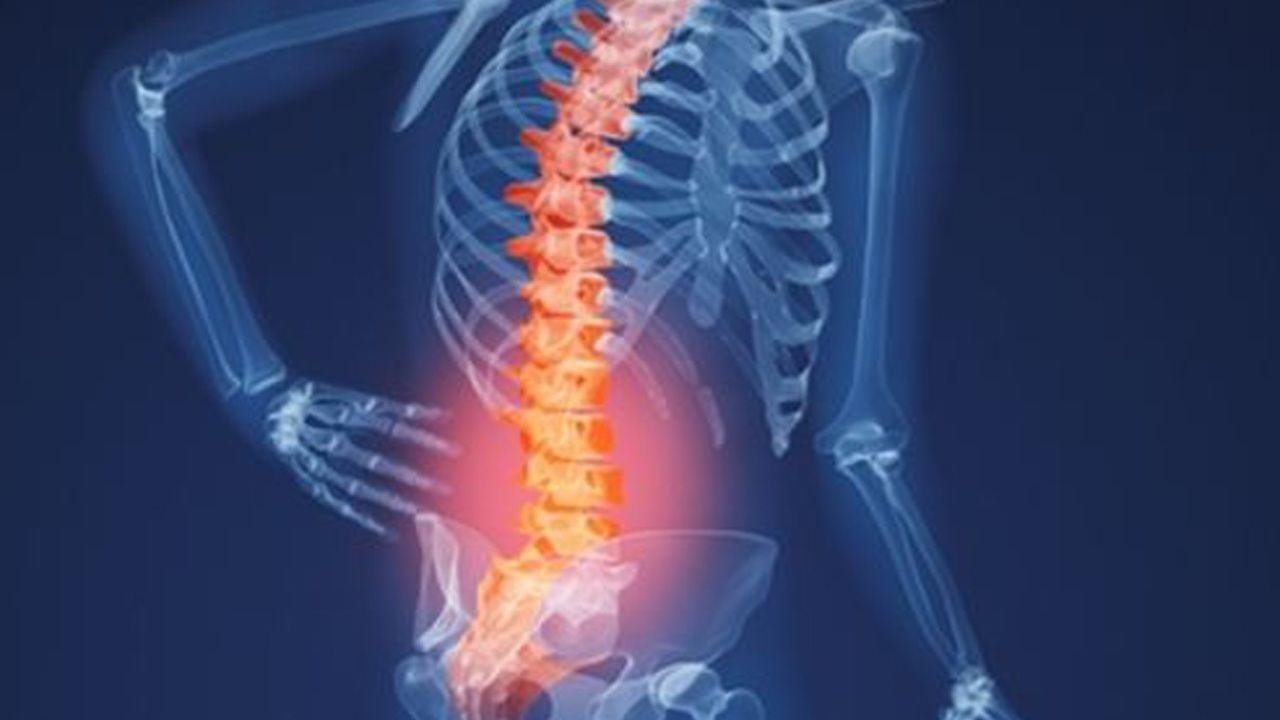 Thoái hóa cột sống là bệnh lý về xương khớp rất phổ biến