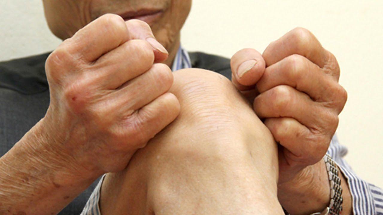 Đau và cứng khớp là những dấu hiệu thoái hóa đầu gối