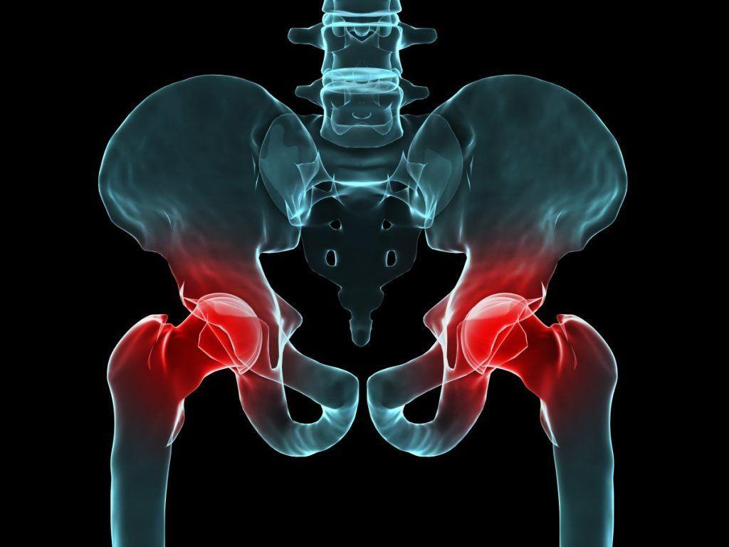 Khi bị thoái hóa khớp háng làm giảm khả năng vận động của bệnh nhân