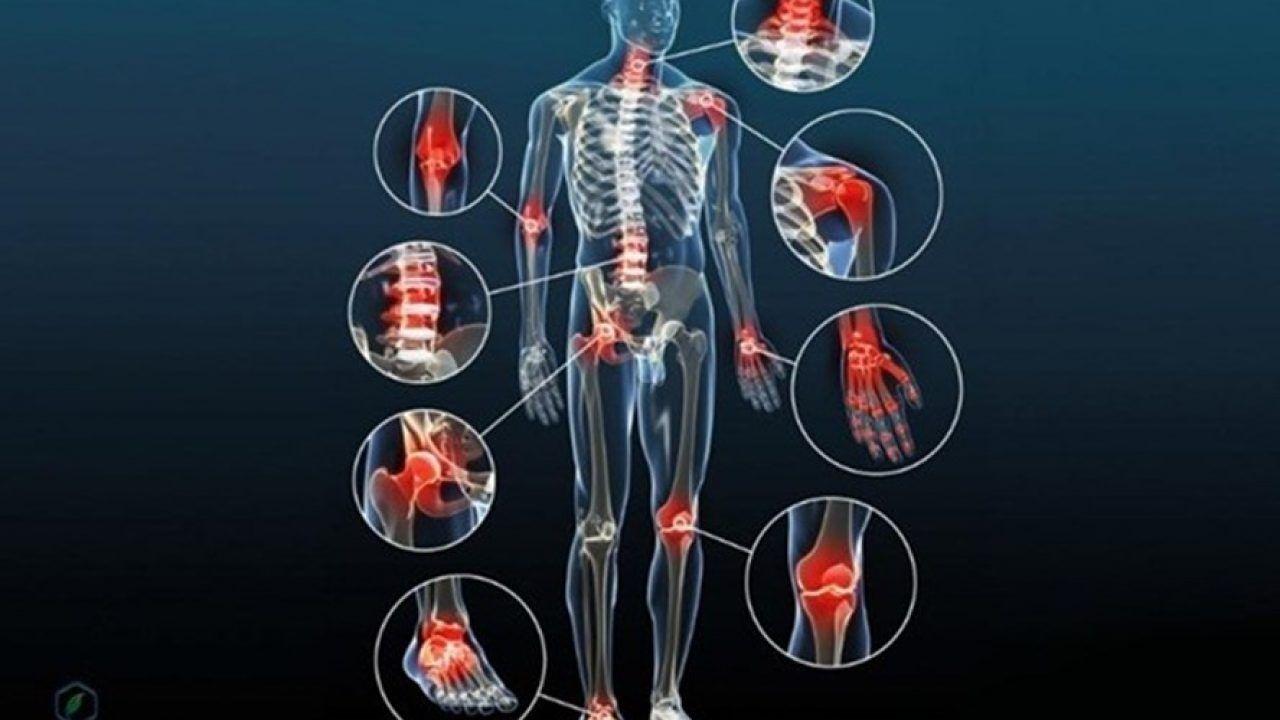 Thoái hóa xương khớp là bệnh lý thường thấy ở người cao tuổi