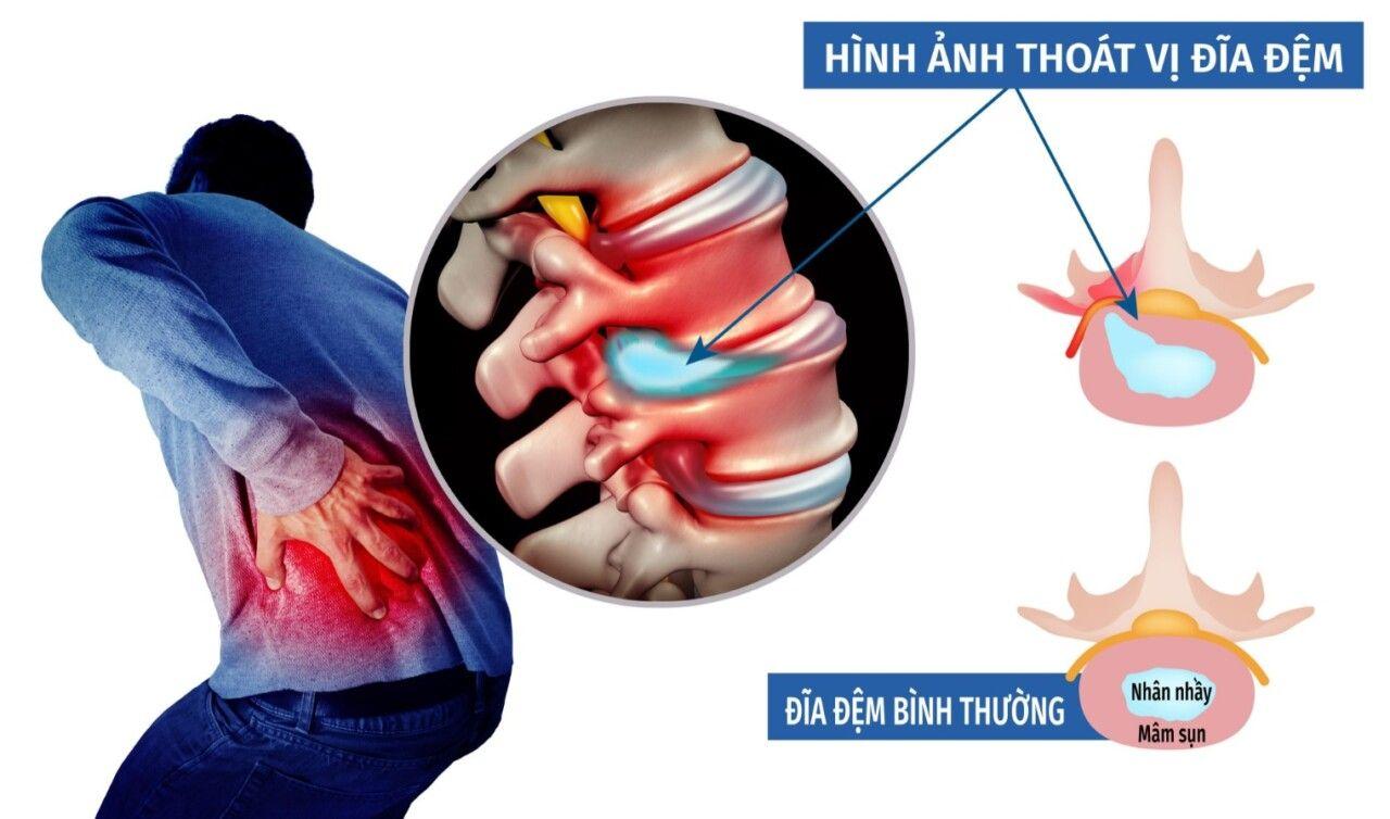 Đau nhức là triệu chứng điển hình của thoát vị đĩa đệm