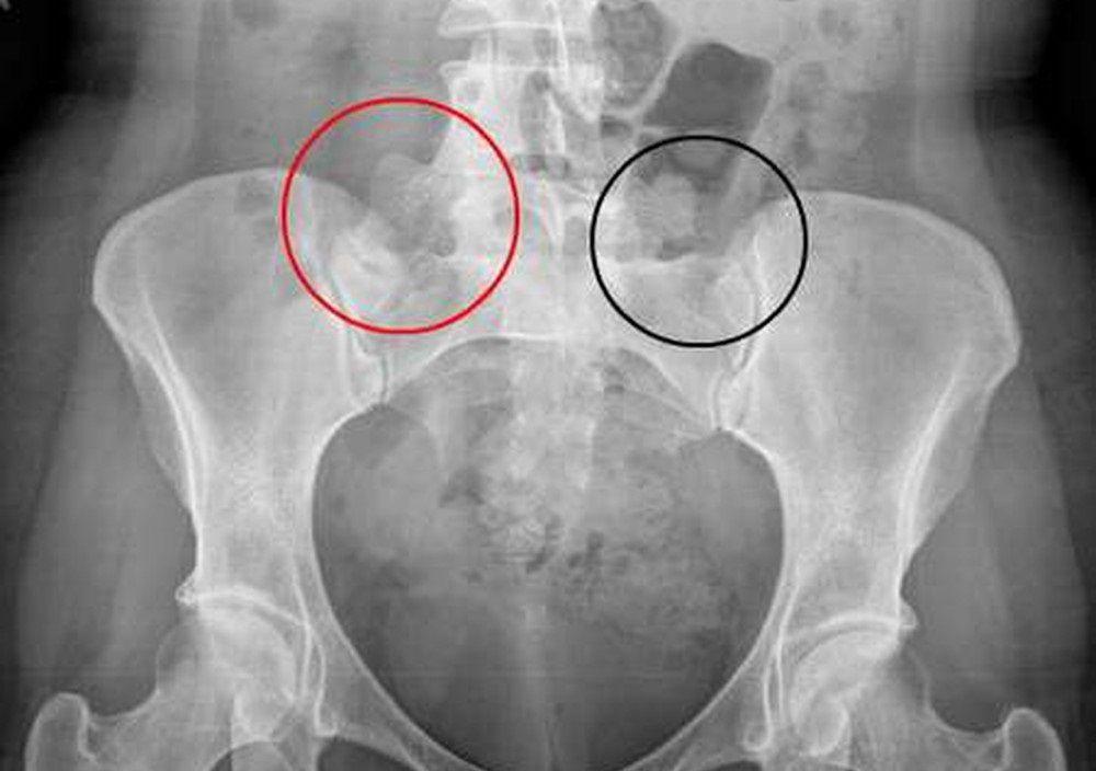Viêm khớp cùng chậu là bệnh lý xuất hiện ở 2 khớp cùng chậu