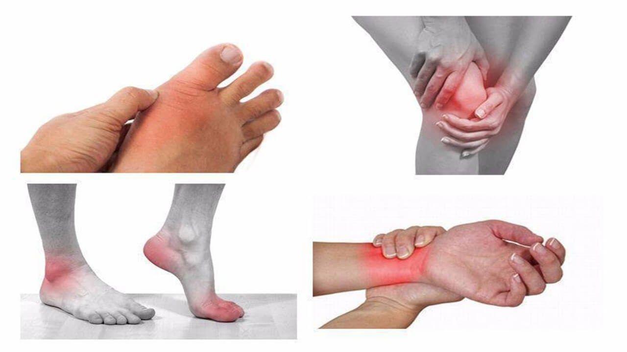 Viêm khớp là viêm nhiều khớp trên cơ thể