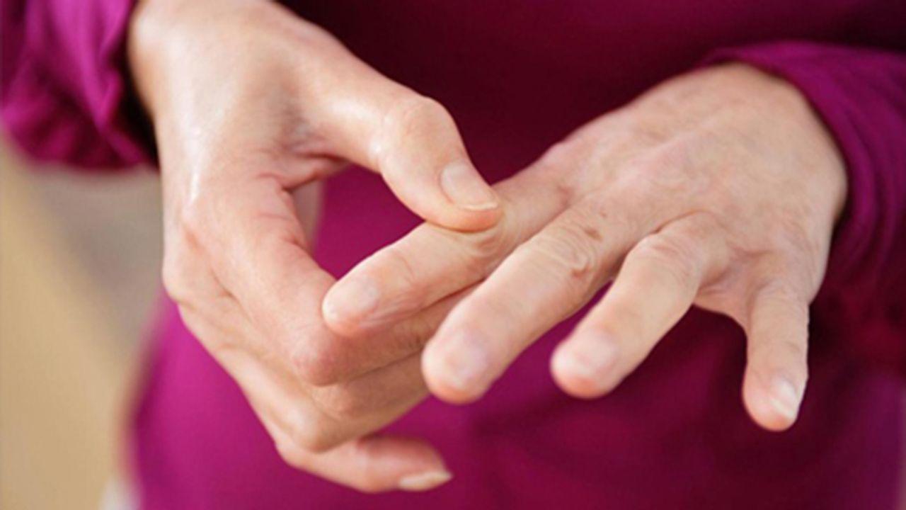 Viêm khớp ngón tay là tình trạng sụn tại ở đầu những xương tạo nên khớp ngón tay bị hiện tượng bào mòn hoặc thoái hóa trong suốt thời gian dài