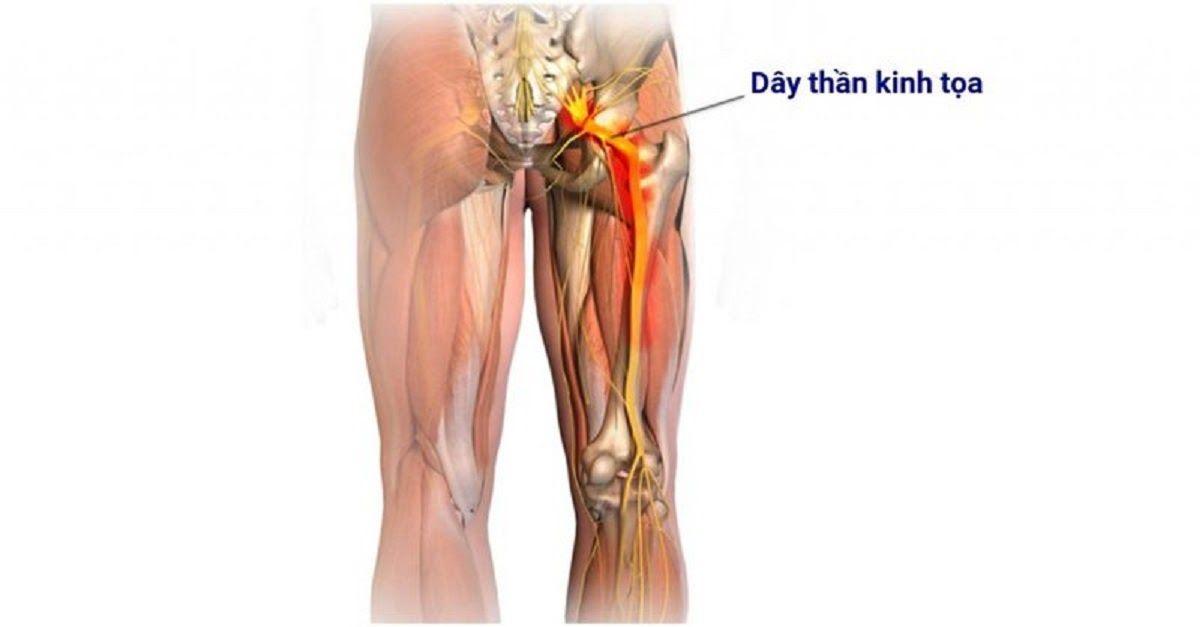 Đau dây thần kinh tọa là biến chứng của bệnh đau gai cột sống lưng