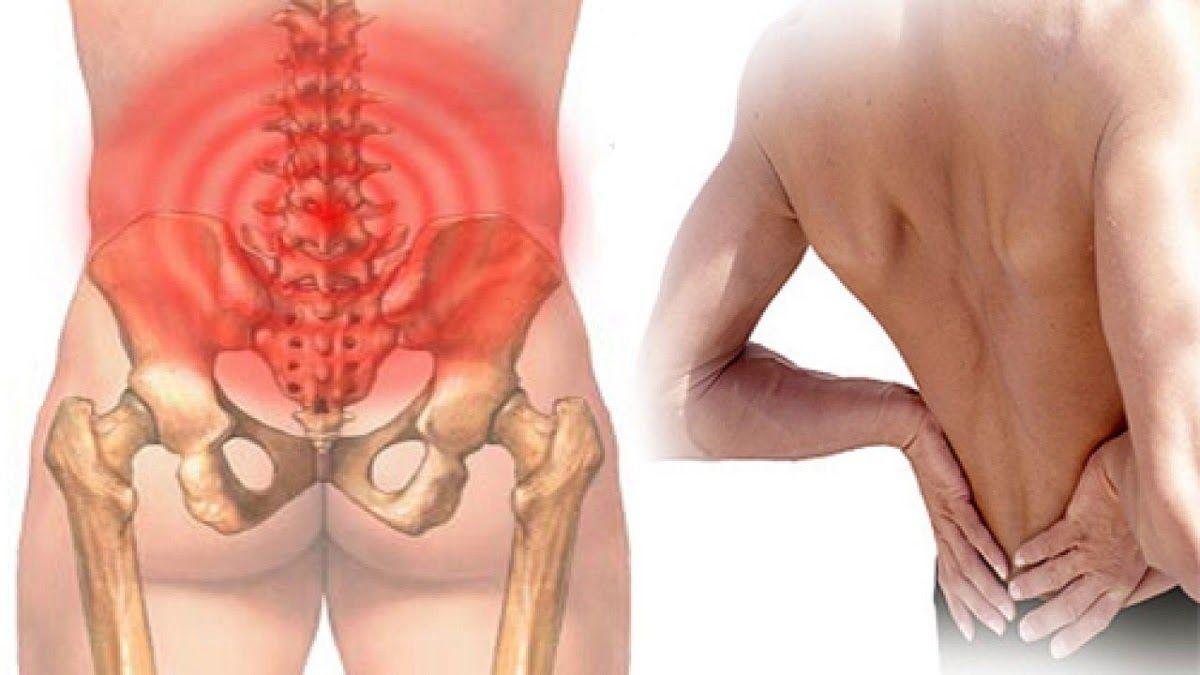 Đau thắt lưng là một trong những triệu chứng điển hình của gai cột sống thắt lưng