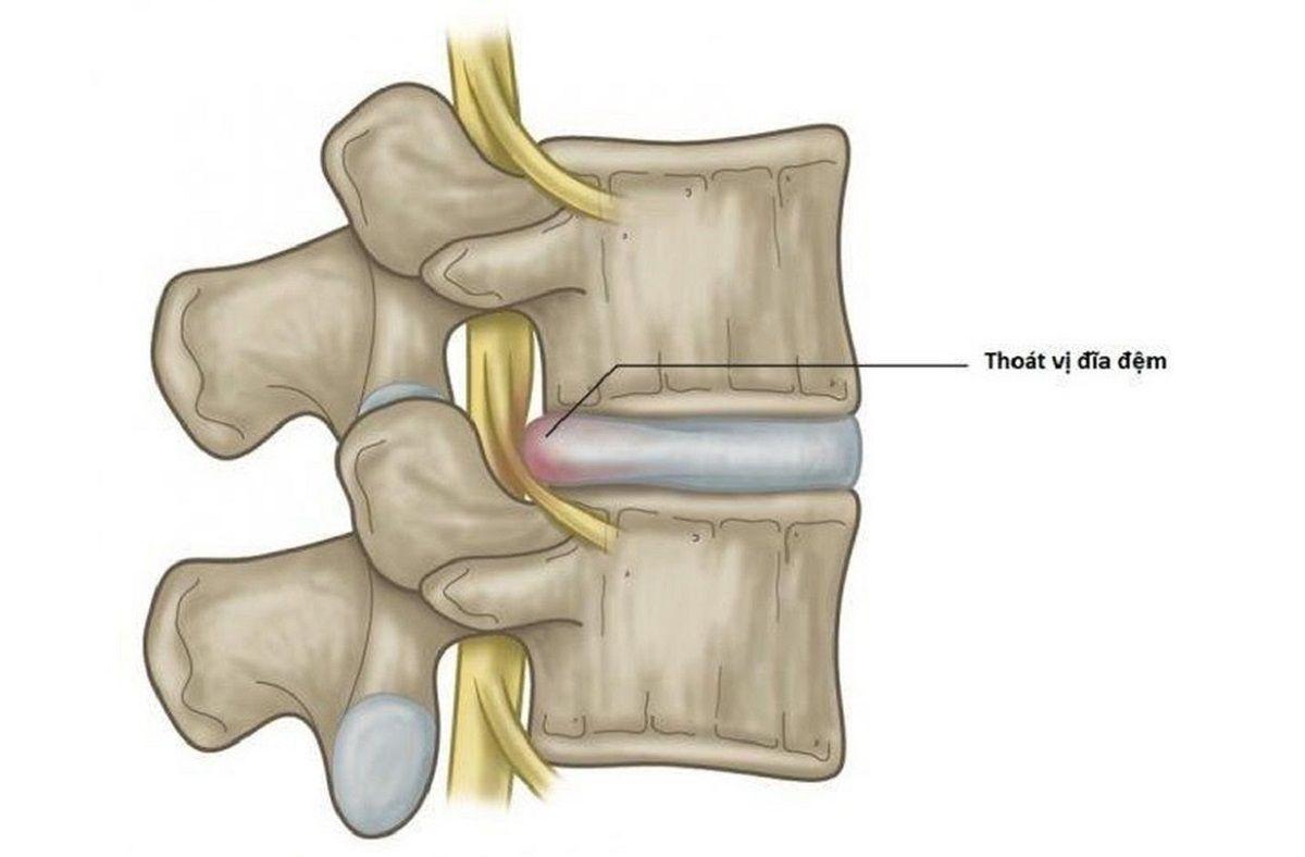 Nhiều người nhầm lẫn tình trạng đau nhức do thoát vị đĩa đệm với một số căn bệnh khác