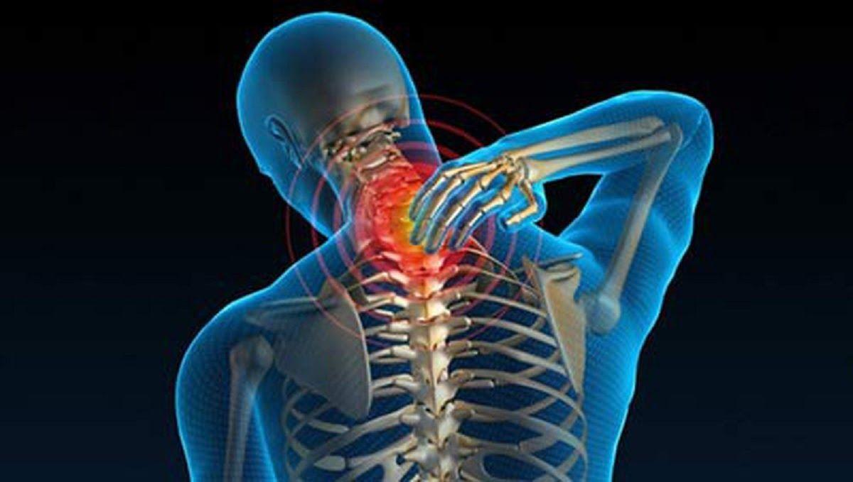 Điều trị sai cách sẽ khiến tình trạng thoát vị đĩa đệm cột sống cổ nghiêm trọng hơn