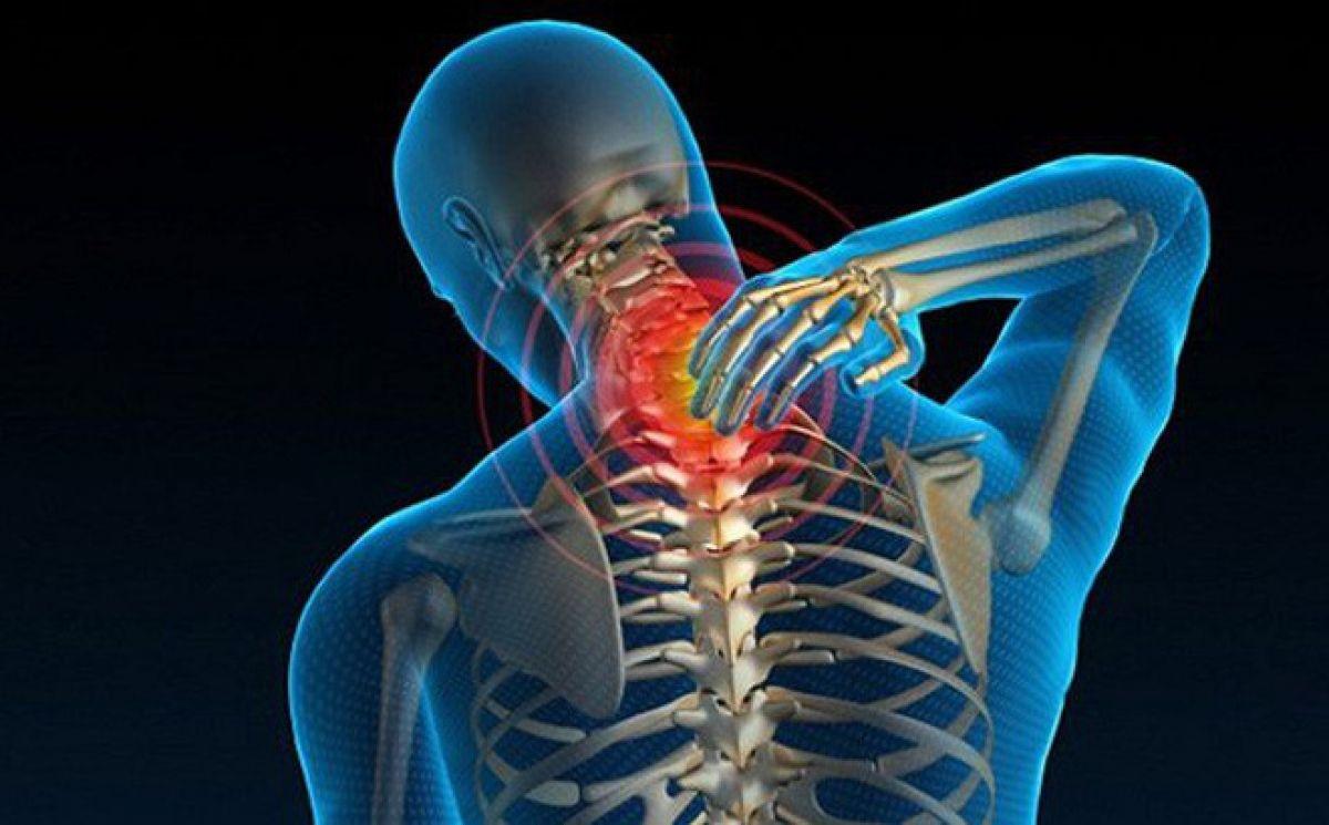 Thoái hóa đốt sống cổ là hiện tượng lão hóa xương ở vùng cổ