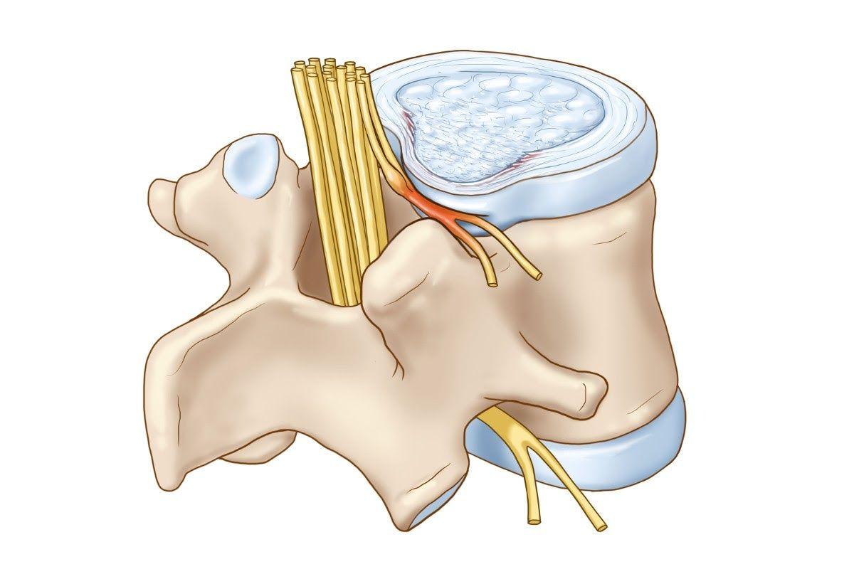 Thoái hóa đốt sống cổ chèn dây thần kinh là một dạng biểu hiện của bệnh thoái hóa cột sống ở cổ