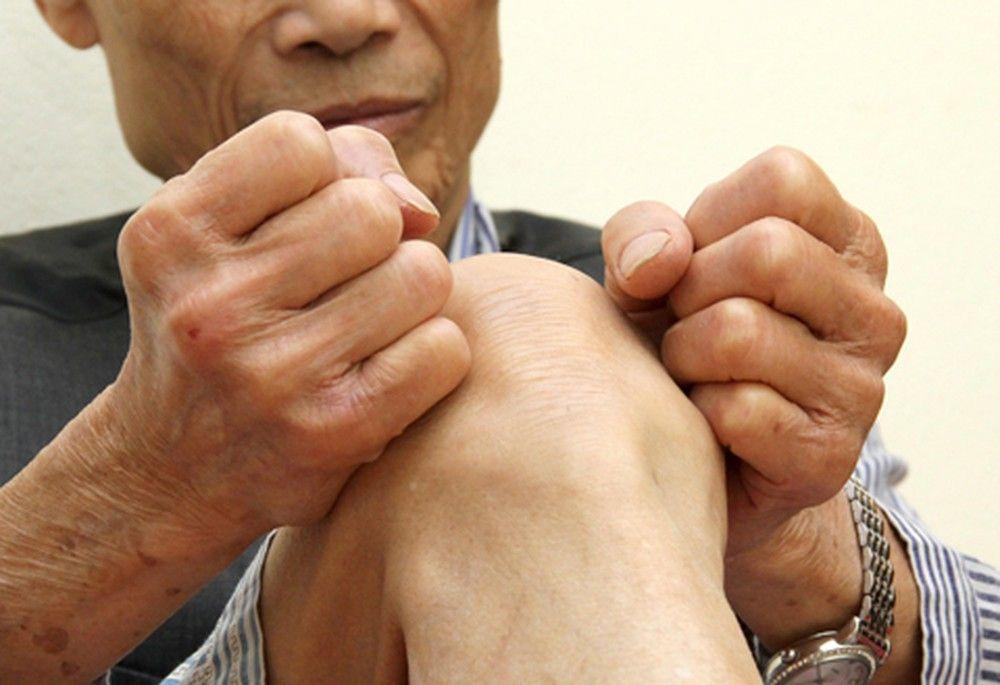Khoảng 25% bệnh nhân bị thoái hóa khớp gối có khả năng bị tàn tật