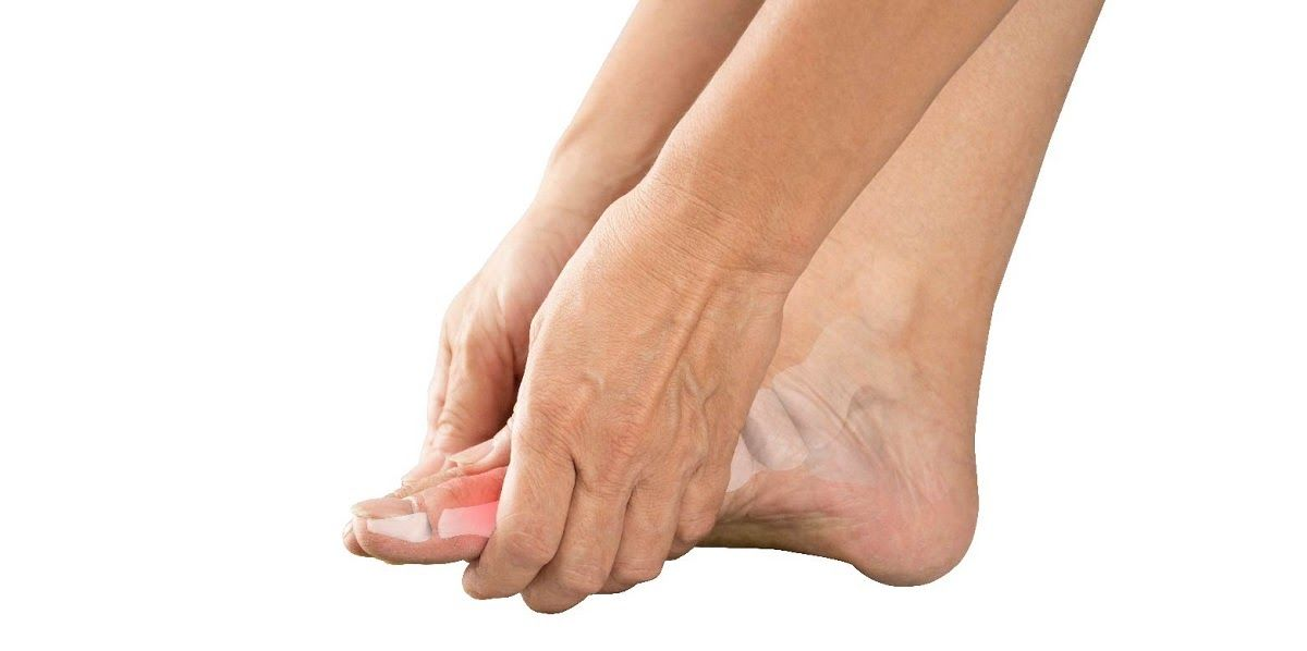 Gout là một bệnh của thoái hóa xương khớp
