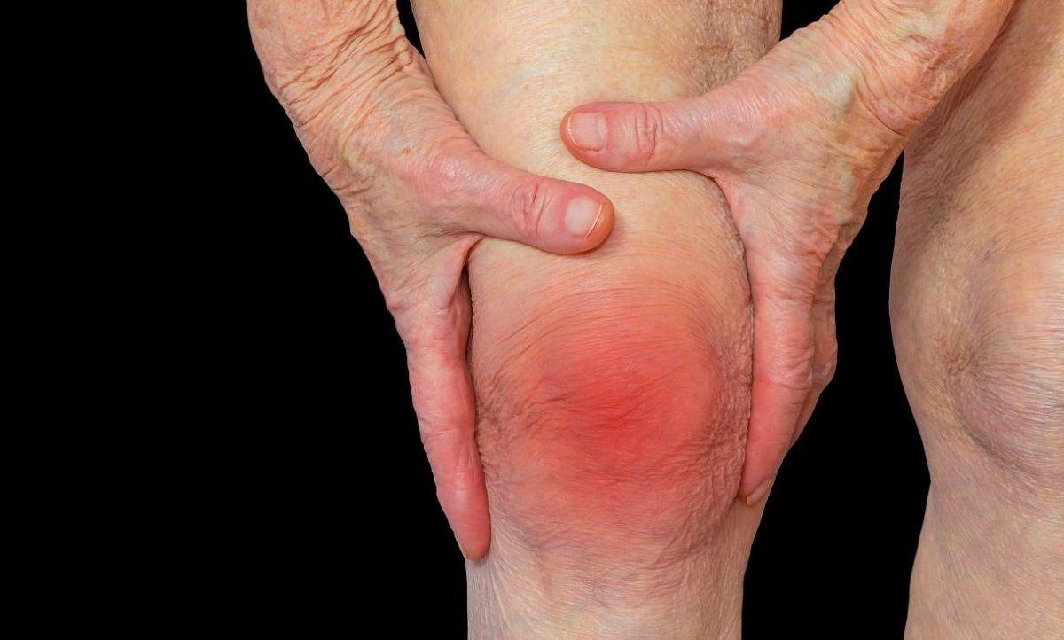 Thấp khớp là một bệnh của thoái hóa xương khớp