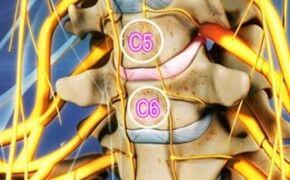 Những điều cần biết về thoát vị đĩa đệm cột sống cổ C5C6