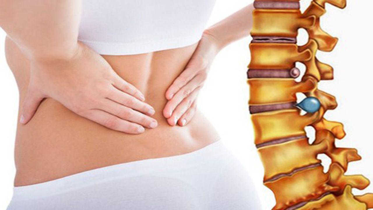 Vùng thắt lưng đau từ âm ỉ đến dữ dội, rối loạn vận động, tê rát bàn chân,...là những triệu chứng của thoát vị đĩa đệm cột sống thắt lưng