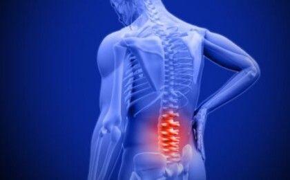 Cách chữa thoát vị đĩa đệm cột sống thắt lưng