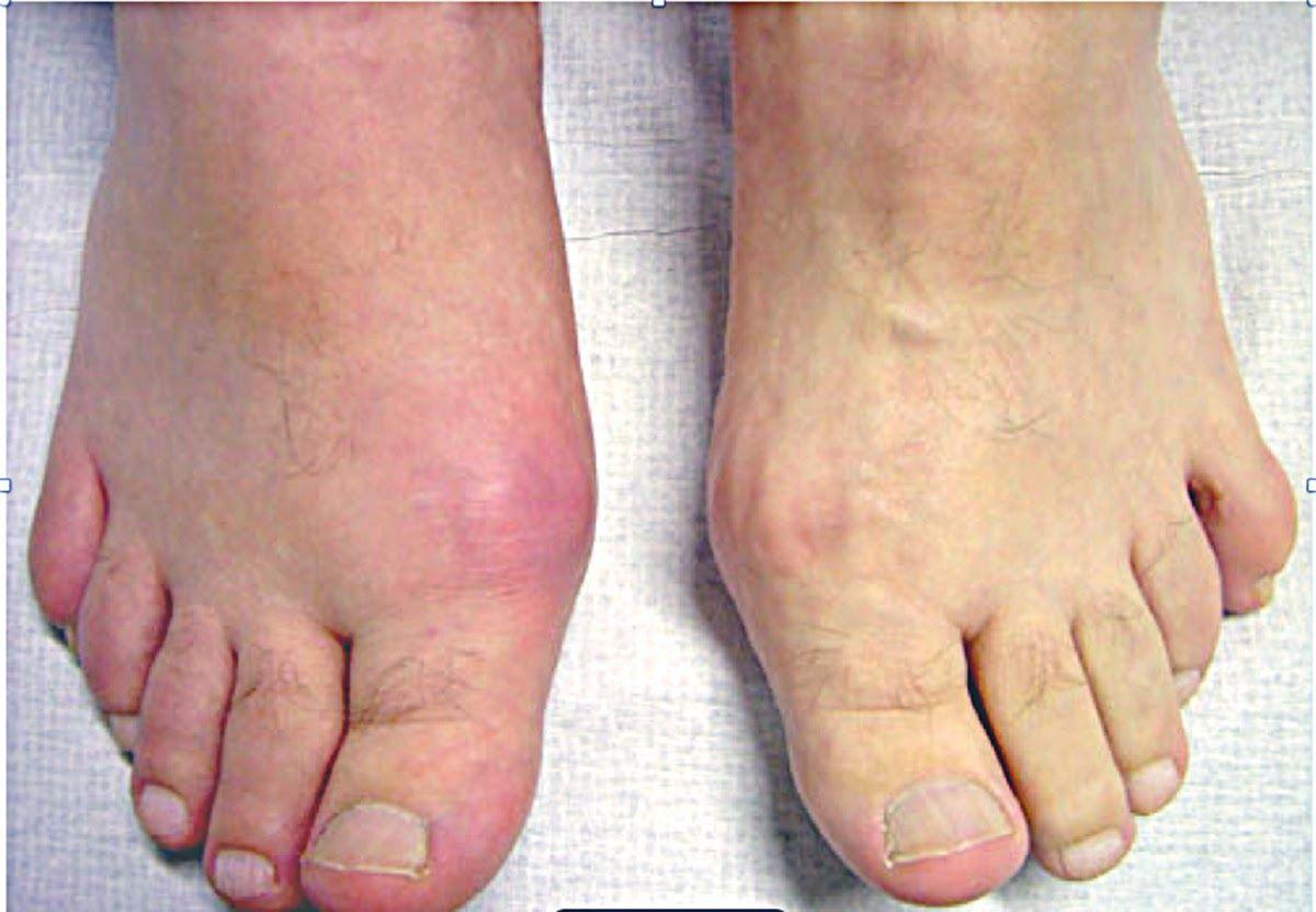 Sưng khớp, viêm khớp, sưng ngón chân,... là triệu chứng điển hình của bệnh gout