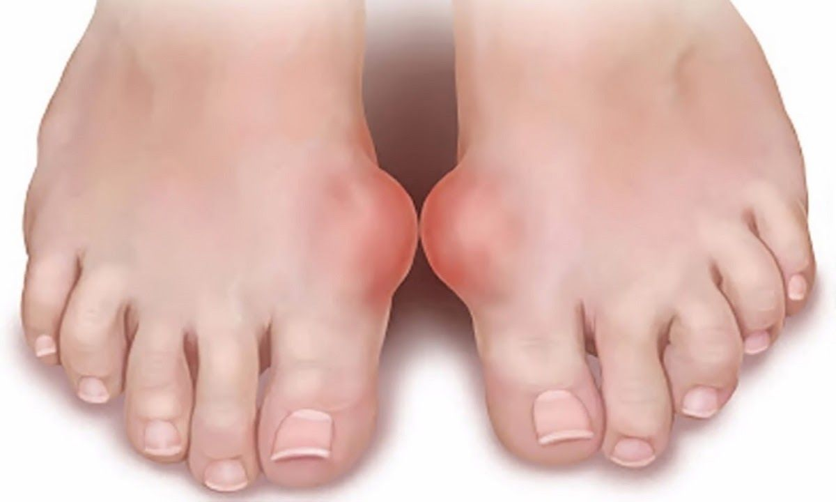 Người bệnh gout mãn tính có thể gặp các cơn đau gout trong vài giờ hoặc vài ngày