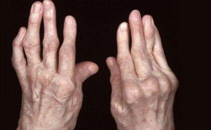 Cách chữa viêm khớp dạng thấp hiệu quả