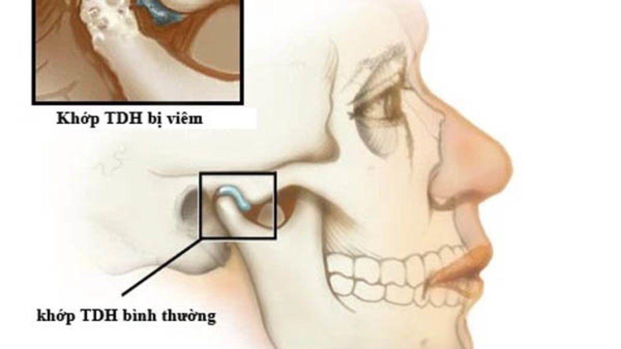 Có nhiều nguyên nhân gây ra viêm khớp hàm thái dương