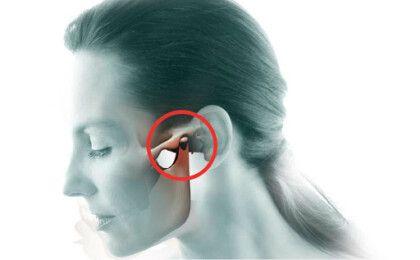 Nguyên nhân, triệu chứng và cách điều trị viêm khớp hàm thái dương