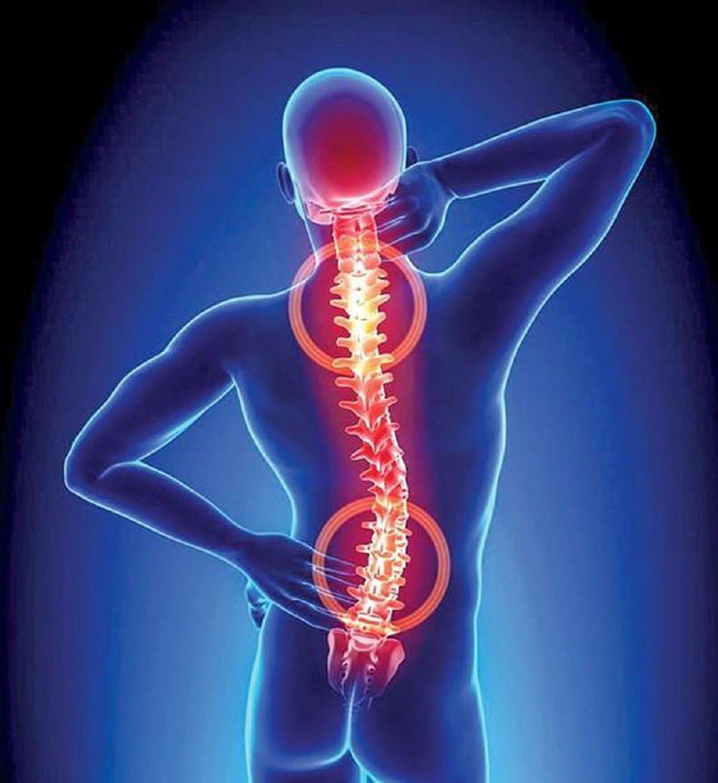 Thoái hoá cột sống là căn bệnh do tình trạng cột sống bị lão hoá dần theo thời gian