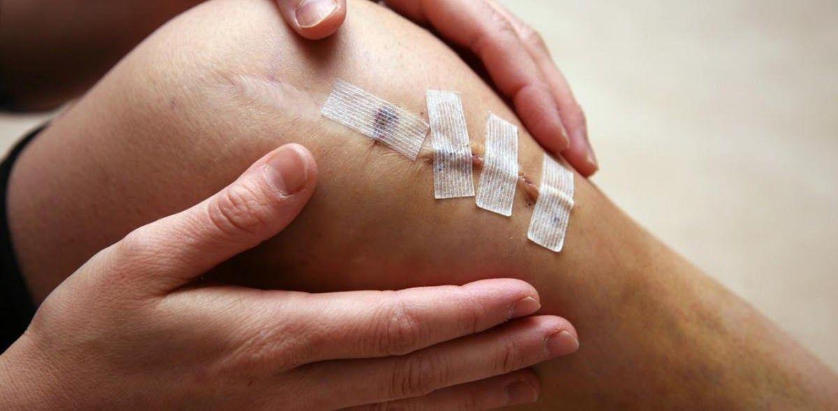 Các chấn thương bên ngoài có thể là nguyên nhân dẫn đến thoái hóa khớp