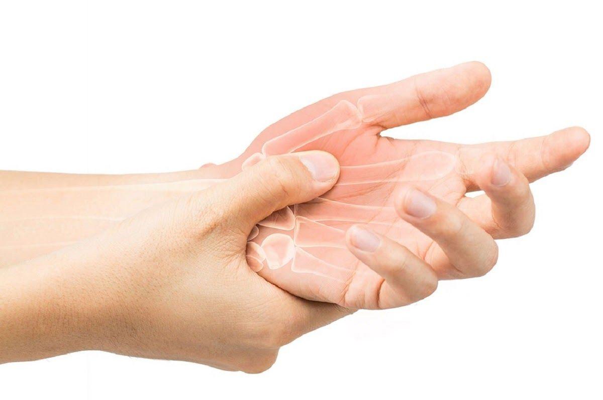 Cứng khớp là triệu chứng của thoái hóa khớp tay