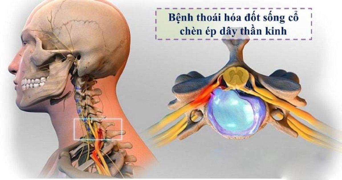 Thoái hóa đốt sống cổ chèn ép dây thần kinh gây ra nhiều biến chứng nguy hiểm