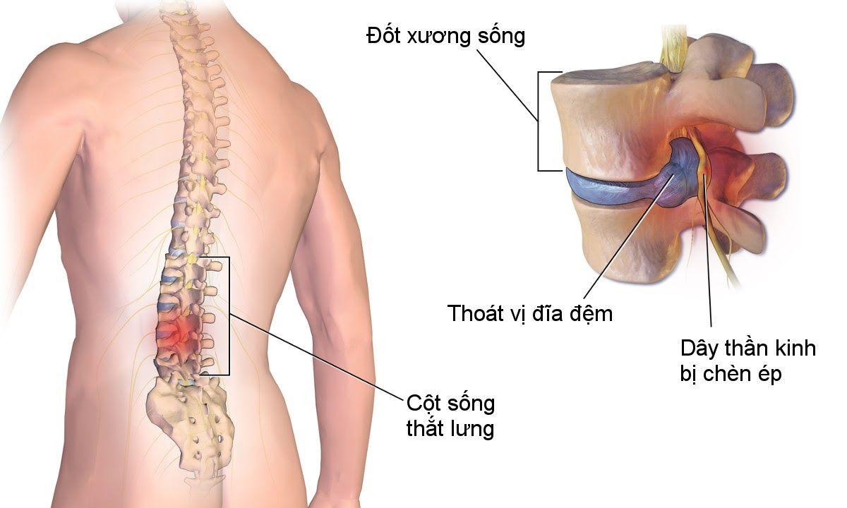 Thoát vị đĩa đệm cột sống thắt lưng thường xảy ra ở vị trí S1, L4, L5