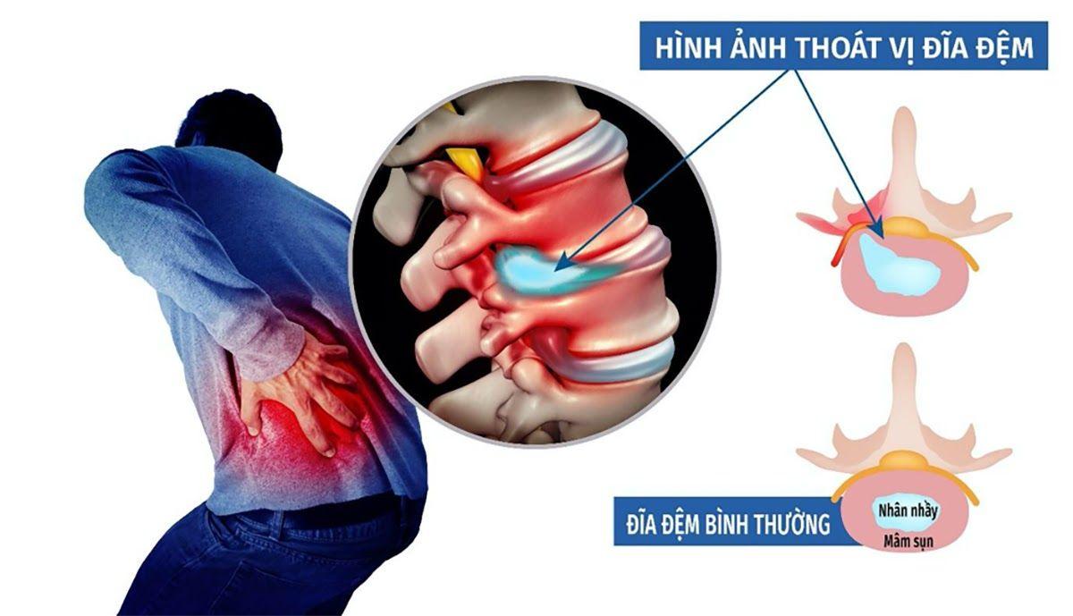 Triệu chứng thoát vị đĩa đệm ở người trẻ tuổi gây ra các cơn đau kéo dài vùng cổ, vùng thắt lưng