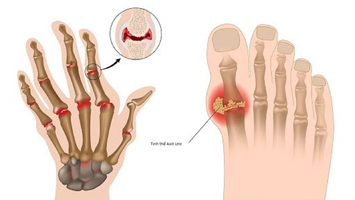 Bệnh gout là tình trạng các tinh thể axit uric lắng đọng trong khớp