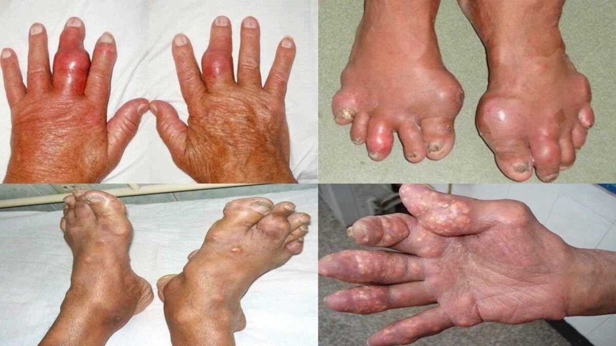 Triệu chứng của bệnh gout là khớp bị sưng tấy, nổi nốt tophi
