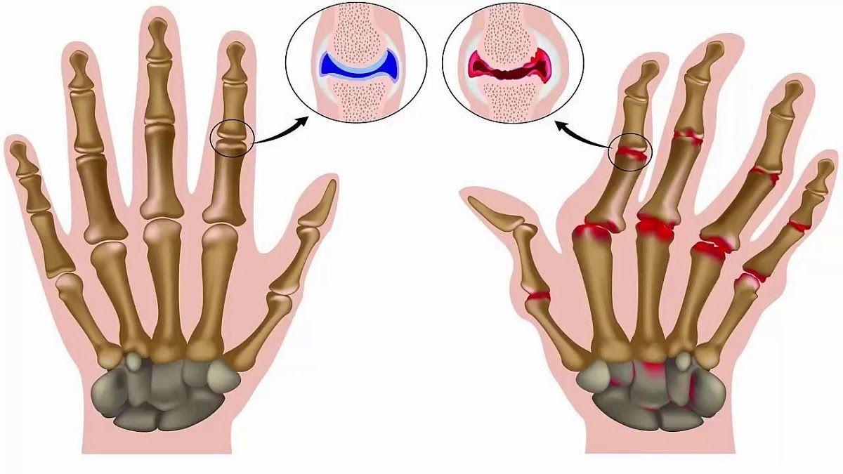 Bệnh viêm khớp dạng thấp gây nên những triệu chứng bệnh đặc thù với các khớp xương bị tổn thương