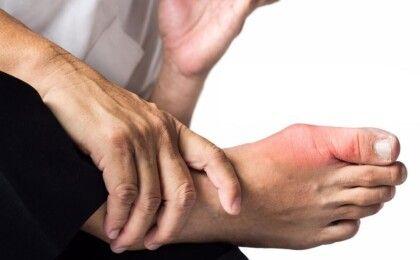 Viêm khớp dạng thấp là gì? Nguyên nhân và triệu chứng bệnh