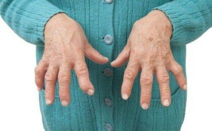 Viêm khớp dạng thấp và những điều cần biết