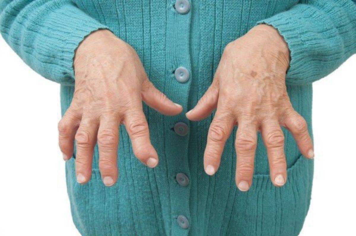 Cứng khớp, đau khớp, sưng đỏ, sưng khớp,… là những triệu chứng viêm khớp dạng thấp ở giai đoạn toàn phát
