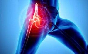 Viêm khớp háng: nguyên nhân, triệu chứng và cách phòng bệnh
