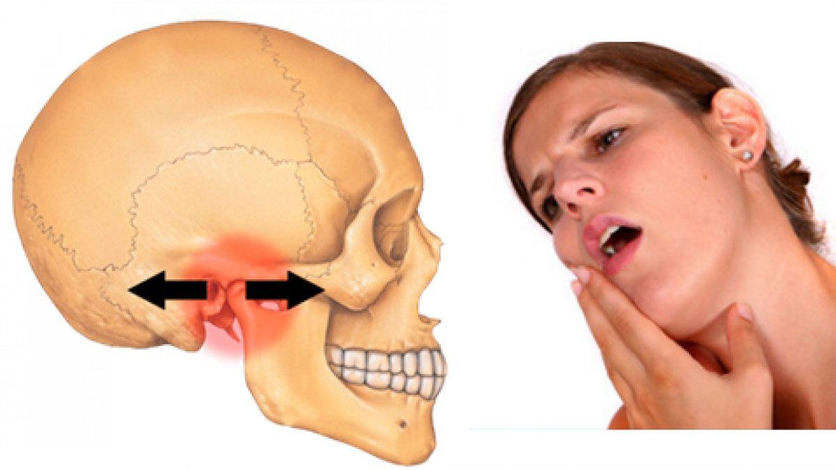 Hình ảnh viêm khớp thái dương hàm