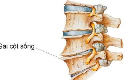 Tìm hiểu về gai cột sống cổ và cách chữa trị