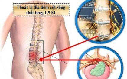 Thoát vị đĩa đệm cột sống thắt lưng là gì? có chữa được không?