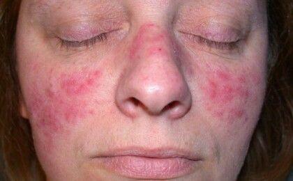 Nguyên nhân gây bệnh và cách phòng ngừa viêm đa khớp dạng thấp