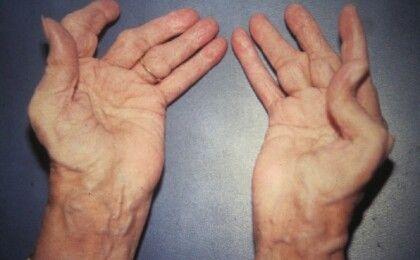 Bệnh viêm đa khớp dạng thấp: Nguyên nhân, triệu chứng và phương pháp điều trị